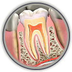 Root Canal Treatment McDonough