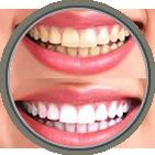 Teeth Whitening McDonough