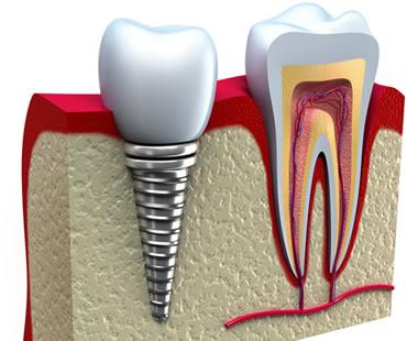 dental implants dentist in McDonough