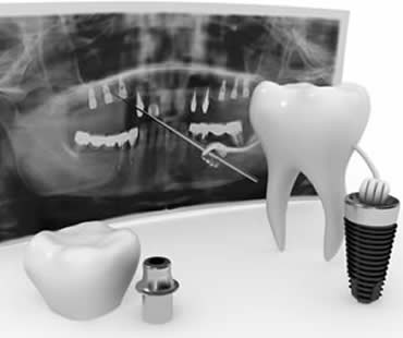 Dental implants dentist McDonough