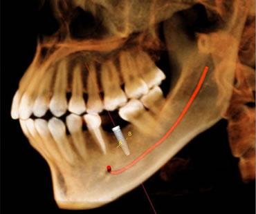Dental implants McDonough